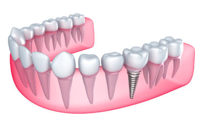 Implantologia Avanzata