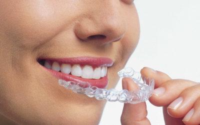 Mascherine trasparenti per una bocca perfetta