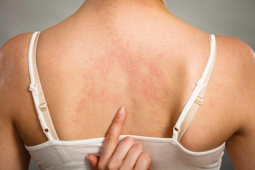 Orticaria: sintomi cause e diagnosi